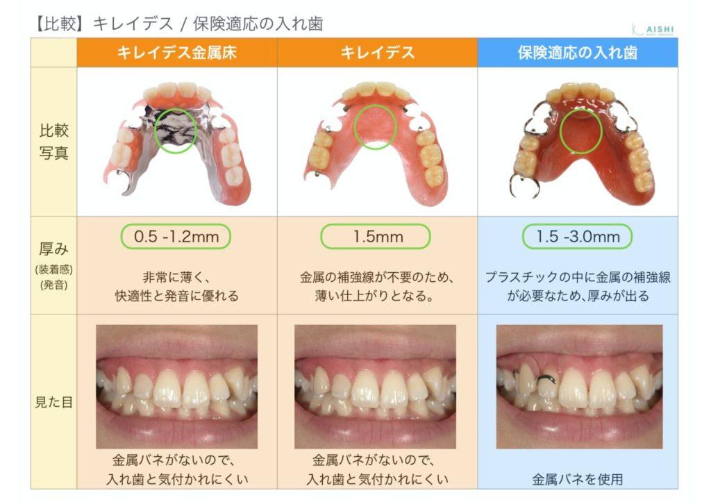 キレイデス 保険適応との違い 入れ歯