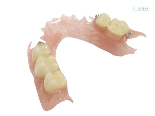 キレイデス 下顎両側 入れ歯