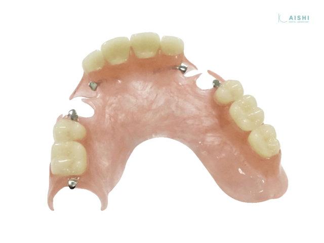 キレイデス 入れ歯 上顎両側
