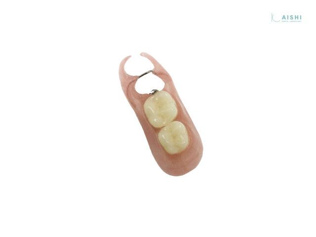 キレイデス 入れ歯 片側遊離端