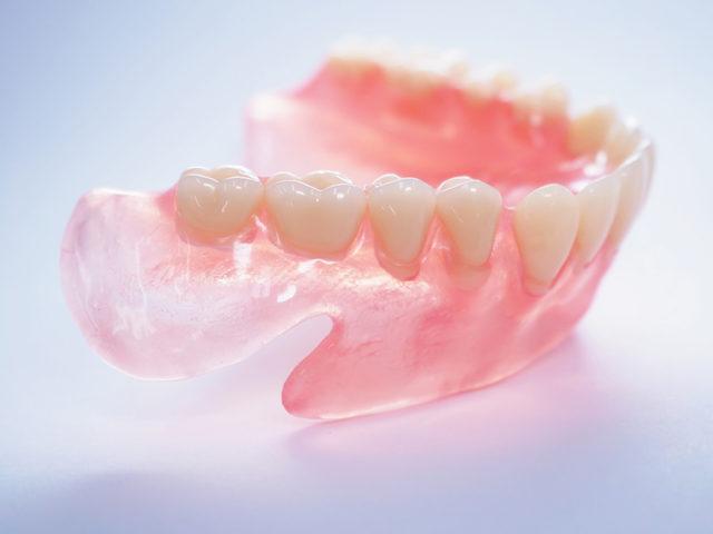 ノンクラスプデンチャー 義歯